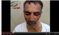 Gefoltert von FSA-Milizen