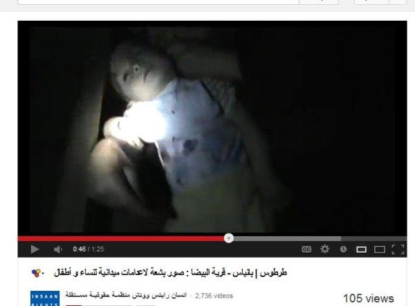 Ist das das Kleinkind welches später verbrannte Beine hatte?