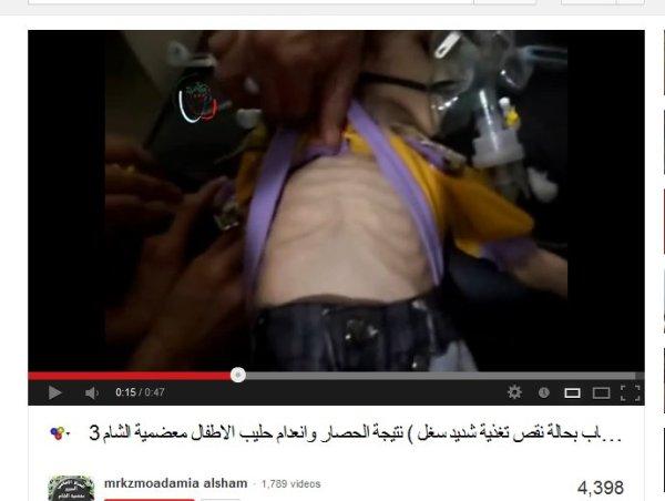Verhungert in Rebellengebiet, für Propaganda ausgeschlachtet