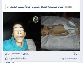 """Die """"giftgas-opfer"""" waren soweit man sehen konnte in den etwa 200 Videos der Opposition normal genährt. Warum sind diese Kinder verhungert in Rebellengiebt. Für Propaganda!"""