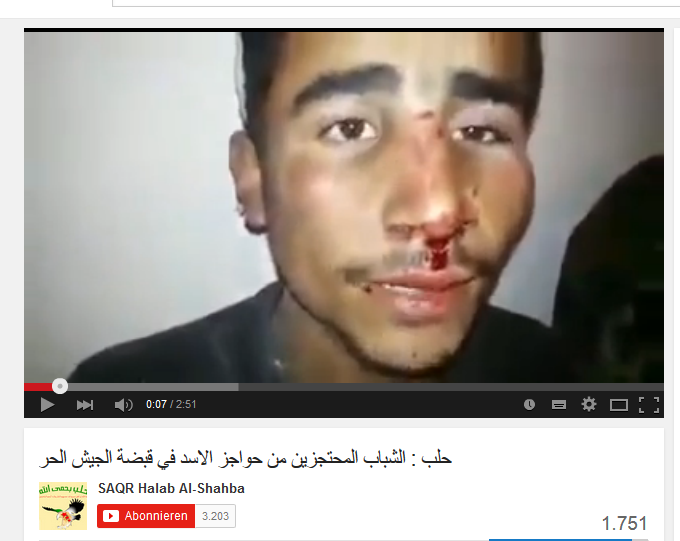 Aleppo broken nose