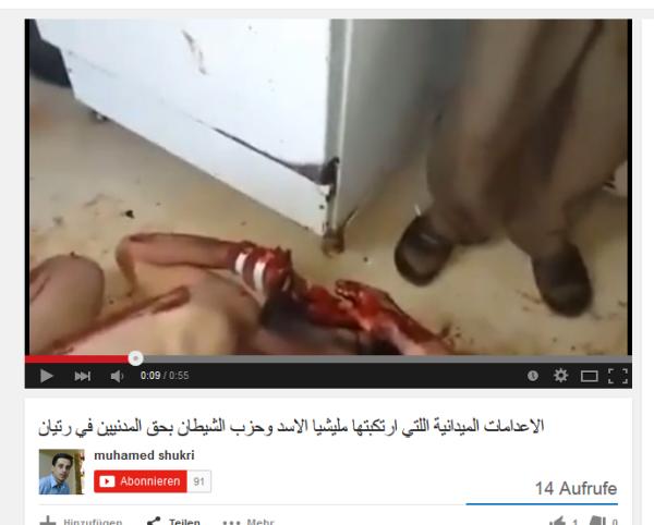 Ermordet Hand ein Verband