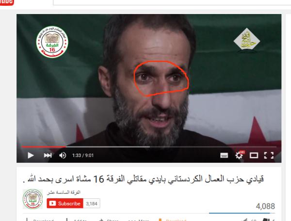 Ashrafiehe gebrochene Nase